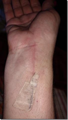 Surgery (3)